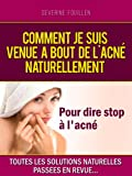 Traitement De L'acnée - Best Reviews Guide