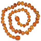 Best Amber Teething Necklaces - Genuine Baltic Amber Necklace - Raw not Polished Review