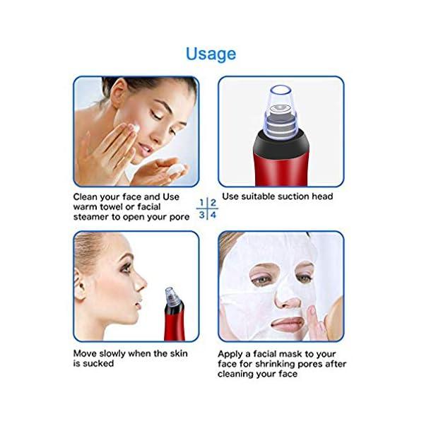 VGROUND 5- in-1 Limpiador de Poros, Eléctrico Eliminador de Puntos Negros y Espinillas con 3 Niveles de Succión Ajustables para El Acné Limpieza de Poros Aspirador