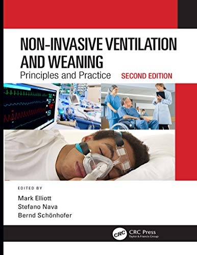 Non-Invasive Ventilation and Weaning: Principles and Practice, Second Edition (English Edition)