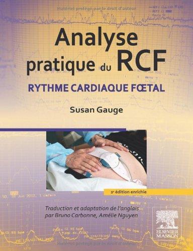 Analyse pratique du RCF: Rythme cardiaque foetal