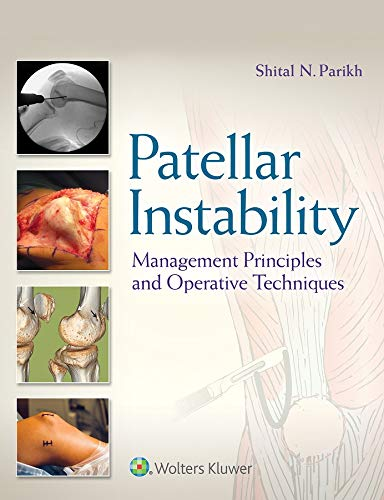 Patellar Instability: Management Principles and Operative Techniques (English Edition)