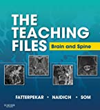 Image de The Teaching Files: Brain and Spine Imaging E-Book