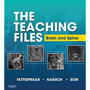 The Teaching Files: Brain and Spine Imaging E-Book