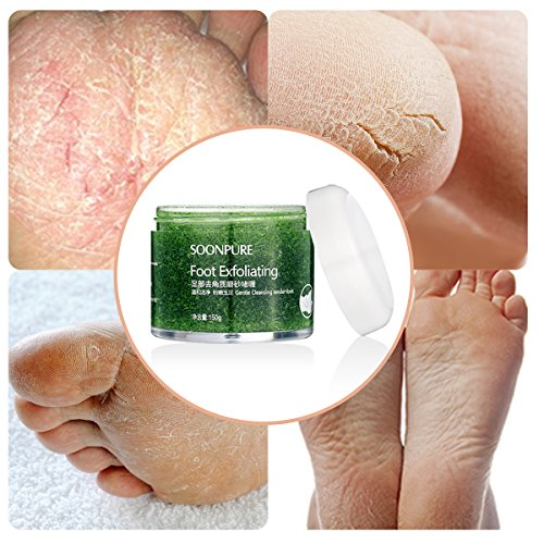 Skymore Exfoliating Foot,Foot Skin Care cream,Foot Moisturizer,Foot Callus Remover-Natural Exfoliator Dry Skin Remover Softens for Thick Cracked Rough Dead Dry Heel Feet with Natural Phytoextraction