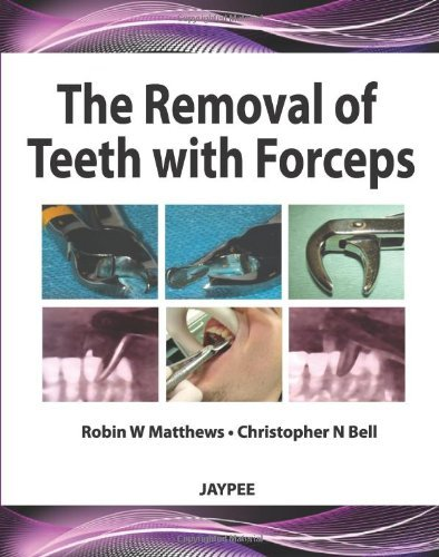 The Removal of Teeth with Forceps by Robin W Matthews (30-Sep-2012) Hardcover