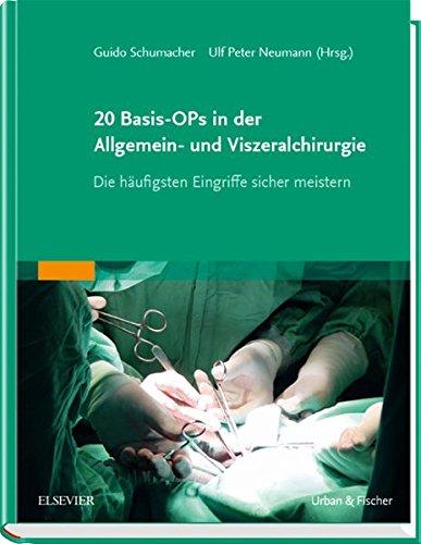 20 Basis-OPs in der Allgemein- und Viszeralchirurgie: Die häufigsten Eingriffe sicher meistern