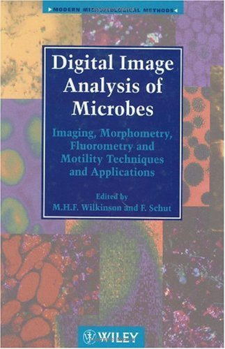 Digital Image Analysis of Microbes: Imaging, Morphometry, Fluorometry and Motility Techniques and Applications (Modern Microbiological Methods Book 6) (English Edition) - Digital Image Detector