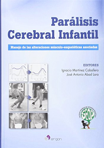 Parálisis Cerebral Infantil: Manejo de las alteraciones músculo-esqueléticas asociadas por Ignacio Martínez Caballero