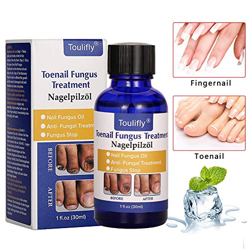 Fungus Stop, Fungus Treatment, Anti Fungus Nail Treatment, Effective Against Nail fungus, Anti Fungal Nail Oil,Removes Yellow from Infected Finger and Toe Nails,Restores Toenail Fungus -