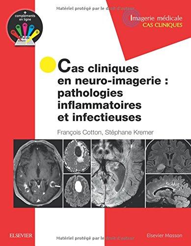 Cas cliniques en neuro-imagerie : pathologies inflammatoires et infectieuses: Path Inflammat Et Infectieuses