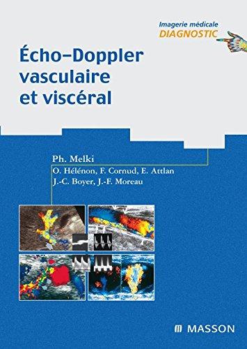 Écho-Doppler vasculaire et viscéral