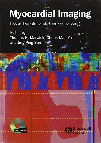 Myocardial Imaging: Tissue Doppler and Speckle Tracking