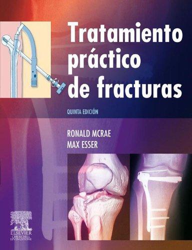 Tratamiento práctico de fracturas