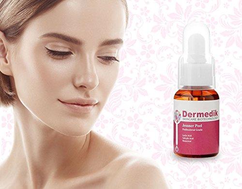 Jessner 20% chemische Peel Acid Gesicht Körper Falten Akne Poren 30ml -