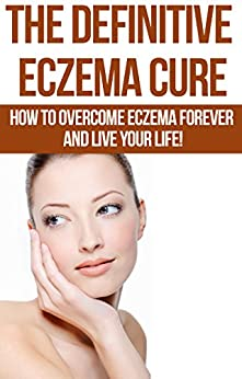 Eczema: The Definitive Eczema Cure - How To Overcome Eczema Forever And Live Your Life! (Skin Conditions, Dermatology, Eczema, Acne, Psoriasis, Skin Care, Essential Oils Book 1) (English Edition) par [Masters, Paul]