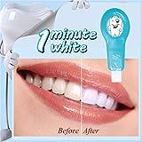 Pro Nano Kit de blanqueamiento dental, Sistema de blanqueador de...