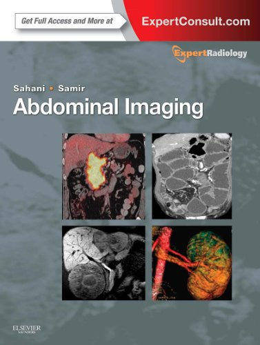 Abdominal Imaging, 2-Volume Set: Expert Radiology Series (Expert Consult: Online and Print), 1e