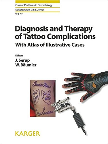 Diagnosis and Therapy of Tattoo Complications: With Atlas of Illustrative Cases. (Current Problems in Dermatology, Band 52)