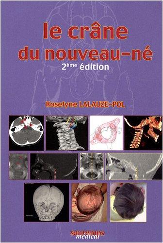 Le crâne du nouveau-né : Des contraintes foetales et leurs enjeux neurologiques aux répercussions chez l'adulte par Roselyne Lalauze-Pol, Pascal Jehanno, Collectif