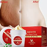 Stretch Marks Scar Removal, Smooth Skin Repair Body Cream Remove Scar Care Postpartum 35g