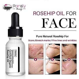 TAOtTAO Striae Gravidarum Essential Oil Anti-Wrinkle Extract Acne Removal Scars Marks Treatment