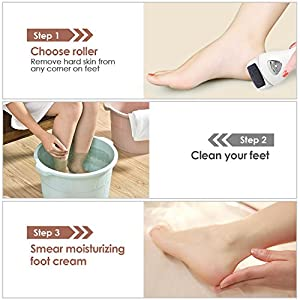 Hard Skin Remover, MYCARBON Proffessinal Rechargeable Pedicure Callus Remover Foot File with Light for Foot Care, Come with 3 Roller Heads and 1 Cleaning Brush