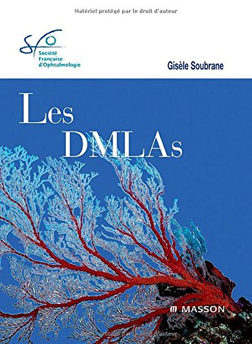 Les DMLAs Rapport SFO 2007