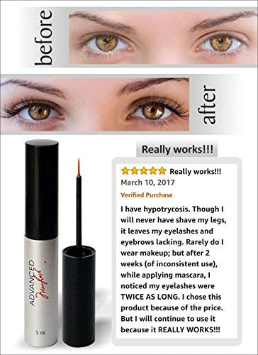 Maxlash Natural Eyelash Growth Serum – El original – 100% natural – Serum alargador de pestañas – Nutre, fortalece y…
