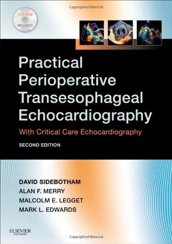 Practical Perioperative Transesophageal Echocardiography: Text with DVD-ROM
