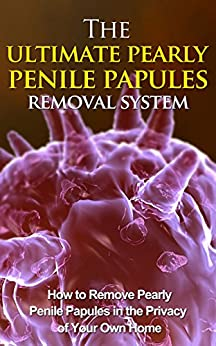 The Ultimate Pearly Penile Papules Removal System - How To Remove Pearly Penile Papules In The Privacy Of Your Own Home (pearly penile, pearly penile papules, pearly penile papules removal) by [Hemon, Victor]