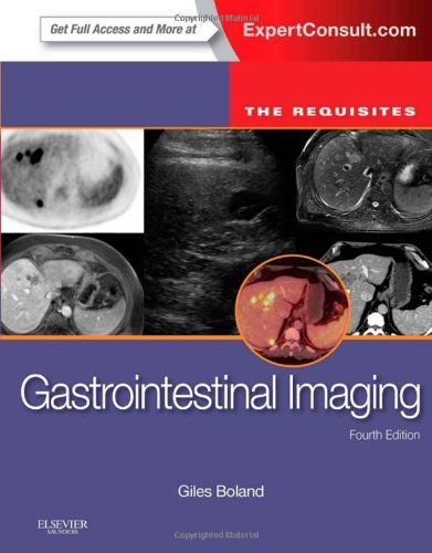 Gastrointestinal Imaging: The Requisites, 4e (Requisites in Radiology) by Giles W Boland MD FACR (2014-01-22)