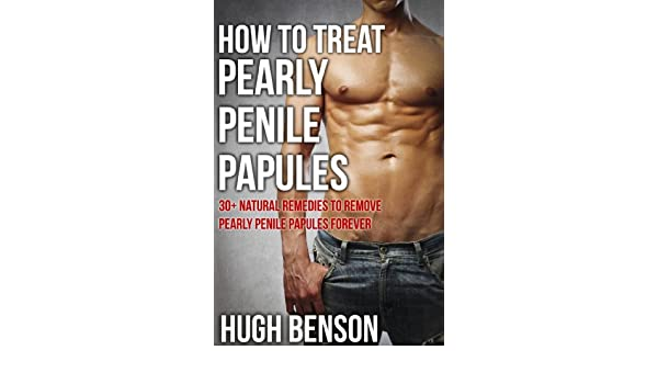 how to get rid of penile papules