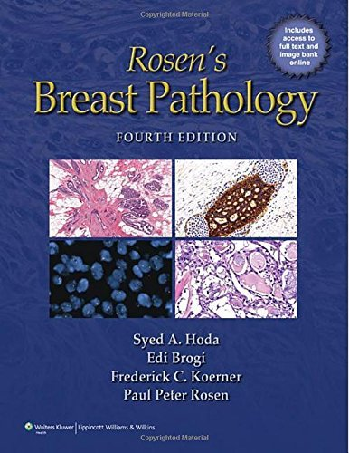 Rosen's Breast Pathology by Syed A. Hoda (2014-02-01)