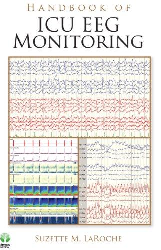 Free Handbook Of Icu Eeg Monitoring Pdf Download Ranjtobias