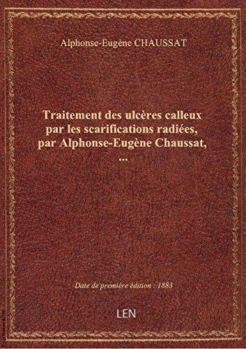 Traitement des ulcères calleux par les scarifications radiées, par Alphonse-Eugène Chaussat,... par Alphonse-Eugène CHAU