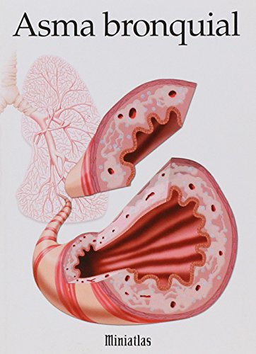Asma Bronquial por Raul Luis Lepori