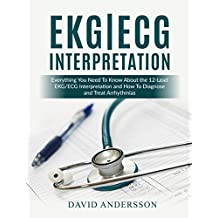 EKG/ECG Interpretation: Everything you Need to Know about the 12-Lead ECG/EKG Interpretation and How to Diagnose and Treat Arrhythmias (English Edition)