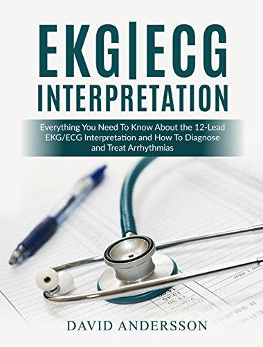 EKG/ECG Interpretation: Everything you Need to Know about the 12-Lead ECG/EKG Interpretation and How to Diagnose and Treat Arrhythmias (English Edition)