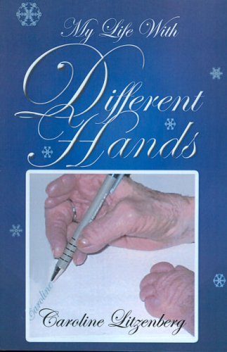 My Life With Different Hands