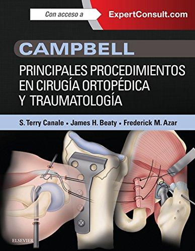 campbell-principales-procedimientos-en-cirugia-ortopedica-y-traumatologia-expertconsult