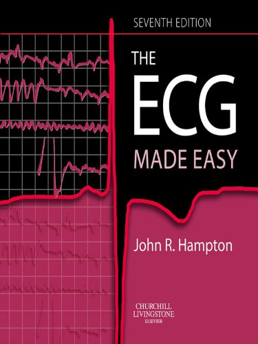 Ecg Made Easy Ebook