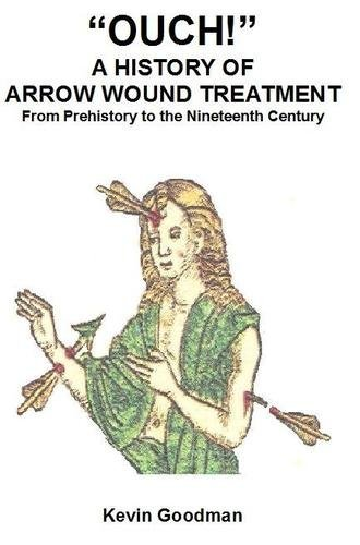 ouch-a-history-of-arrow-wound-treatment-from-prehistory-to-the-nineteenth-century