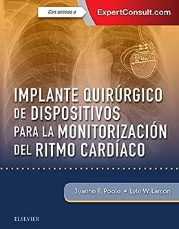 Implante quirúrgico de dispositivos para la monitorización del ...