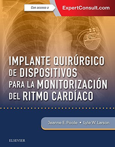 Implante quirúrgico de dispositivos para la monitorización del ritmo cardíaco + ExpertConsult