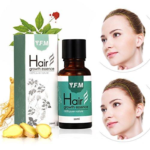 Aceite para Crecimiento del Cabello, Pelo Crecimiento Esencia, Hair Growth Essence 100% Pure Nature, Estimula Cabello, Pérdida de Pelo Tratamiento para los hombres y mujeres