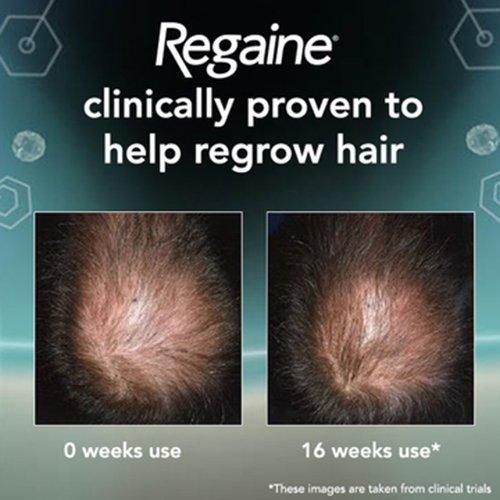 Regaine For Men Hair Regrowth Foam 3 x 73ml