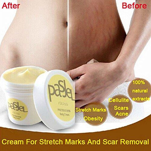DFLY 1 stück Thailand Kostbare Haut Körpercreme Adipositas Marks Remover und Narbe Entfernung Leistungsstarke Postpartale Stretch Schwangerschaft Creme creme