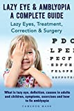 Lazy Eye & Amblyopia - A Complete Guide: Lazy Eyes, Treatment, Correction & Surgery