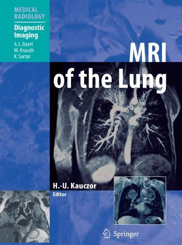 MRI of the Lung (Medical Radiology) (2010-10-07)